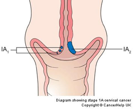 Cervical cancer stages ccuart Image collections