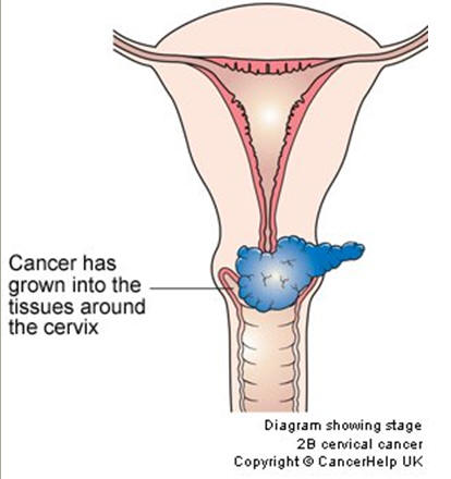Cervix diagram gallery human anatomy organs diagram cervical cancer stages ccuart Image collections